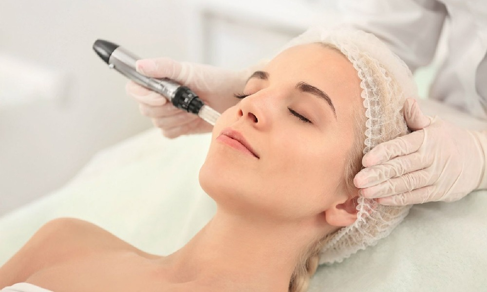 Automated microneedling